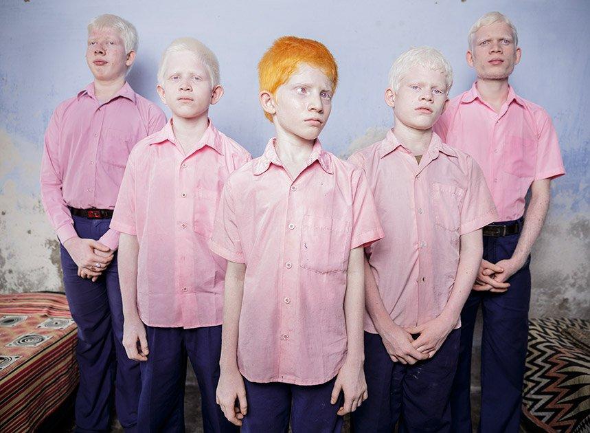 Гей негры альбиносы