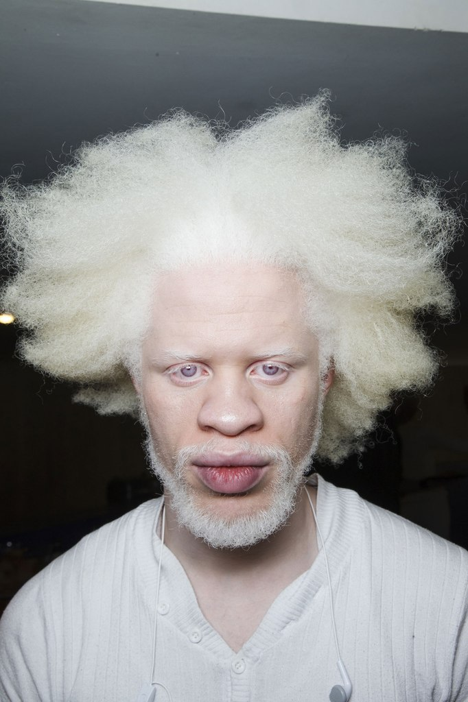 Красивые негры альбиносы