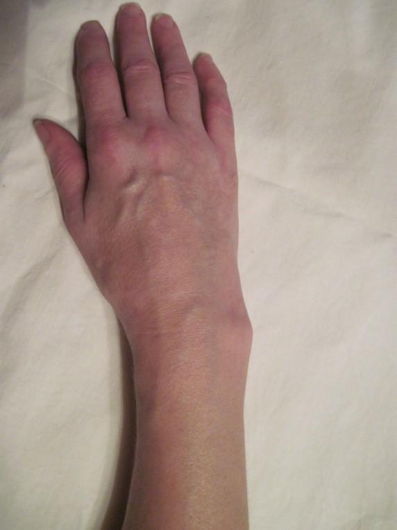 Сломал руку дрочить не может одиночки порно как