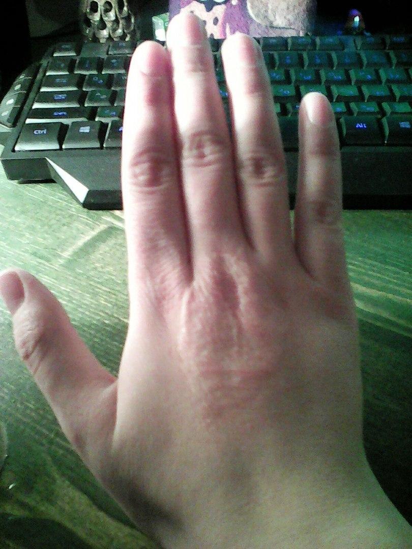 Рука в эопе
