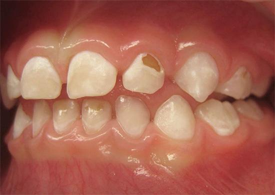 Болит зуб а дырки нет десна хорошие
