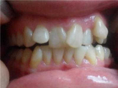 Порно кривые зубы клыки