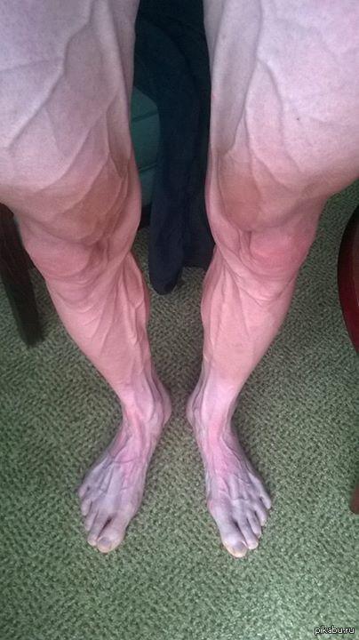 Ноги Бартоша Хузарски после 18-го этапа Тур де Франс 2014