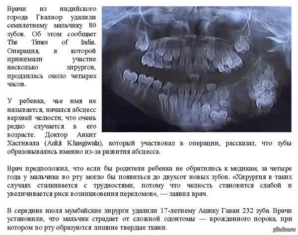 В Индии семилетнему мальчику удалили 80 зубов ссылка http://lenta.ru/news/2014/12/29/indian_teeth/