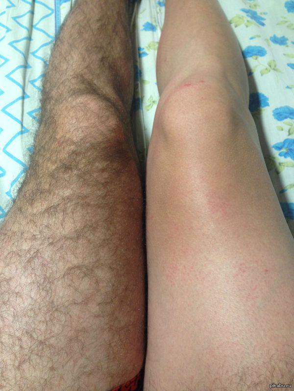 Голых людей очень волосатые женские ножки фото целующие