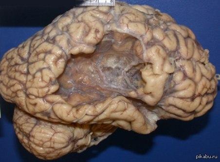 Мозг человека, пережившего обширный инсульт.