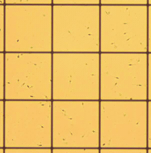 Сперма под микроскопом картинка, новое красивое русское порно в нд качестве