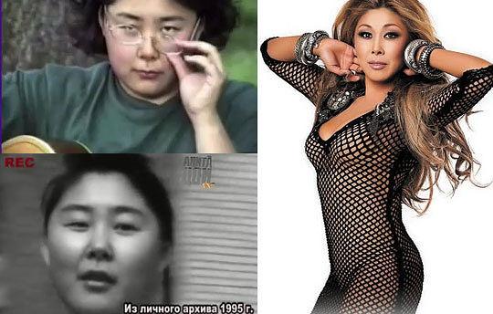 Анита цой до и после