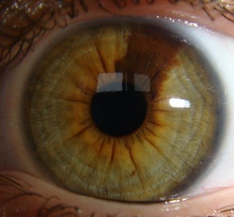Радужная оболочка глаза белых и негров