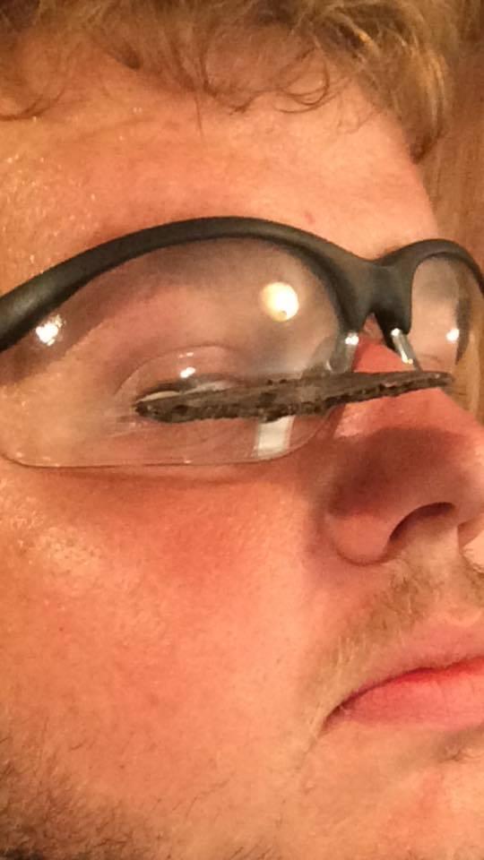 Стружка металу попала в око