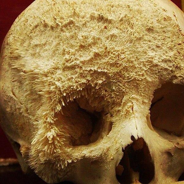 рак кости что это