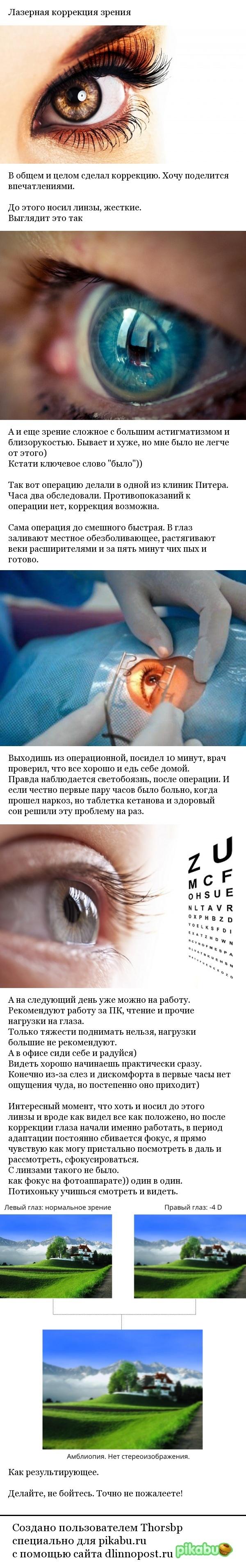 Лазерная коррекция Зрение, Коррекция, Лазер, Длиннопост