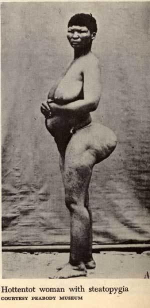 Женский половой орган гттенготский передник фото #12