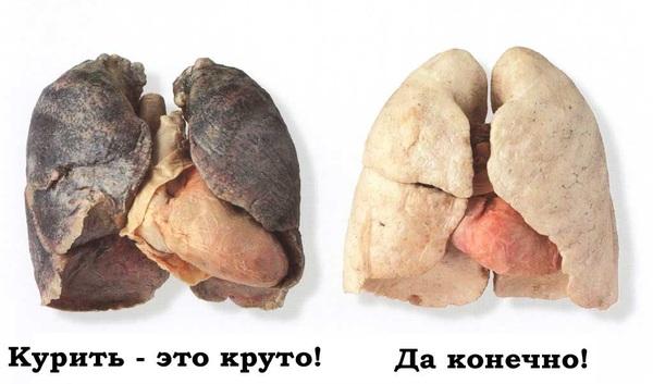 Легкие курильщика. Курение, Легкие, Судмедэксперт, Длиннопост
