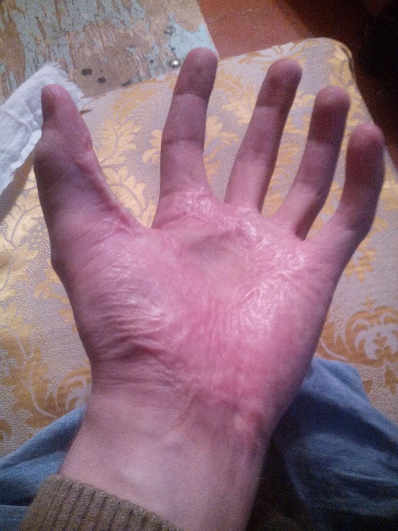 Рукой по плечо в жопу