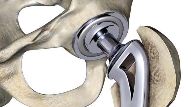 стационар эндопротезирование коленного сустава центр росздрава